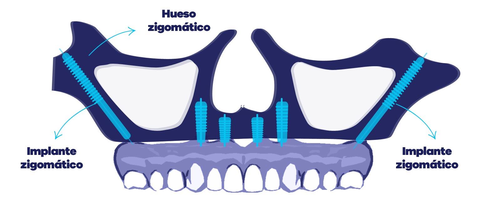 Imagen_tratamientos-implante-zigomatico1