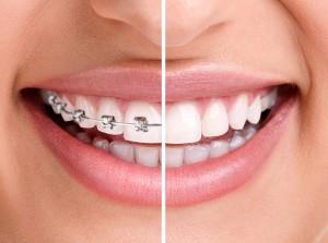 braces-300x223