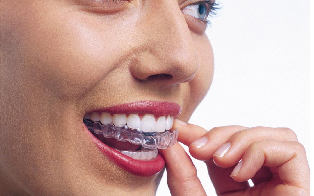Ortodoncia para adultos