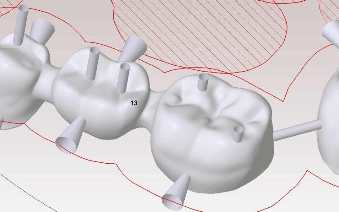 Diseñamos tu sonrisa con la tecnología CAD-CAM para prótesis dentales