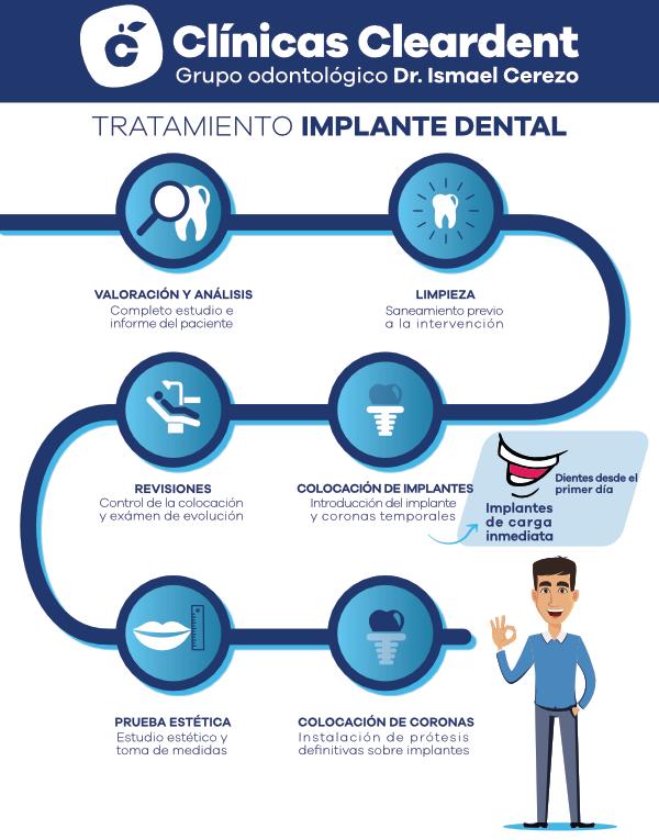 proceso implantes dentales de carga inmediata