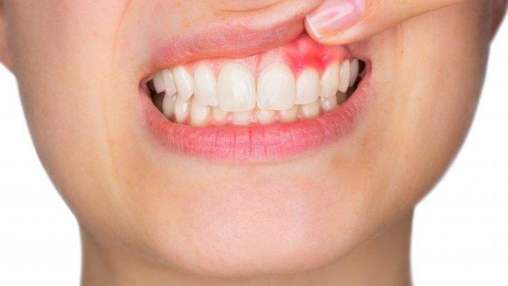 periodontitis a causa del tabaco