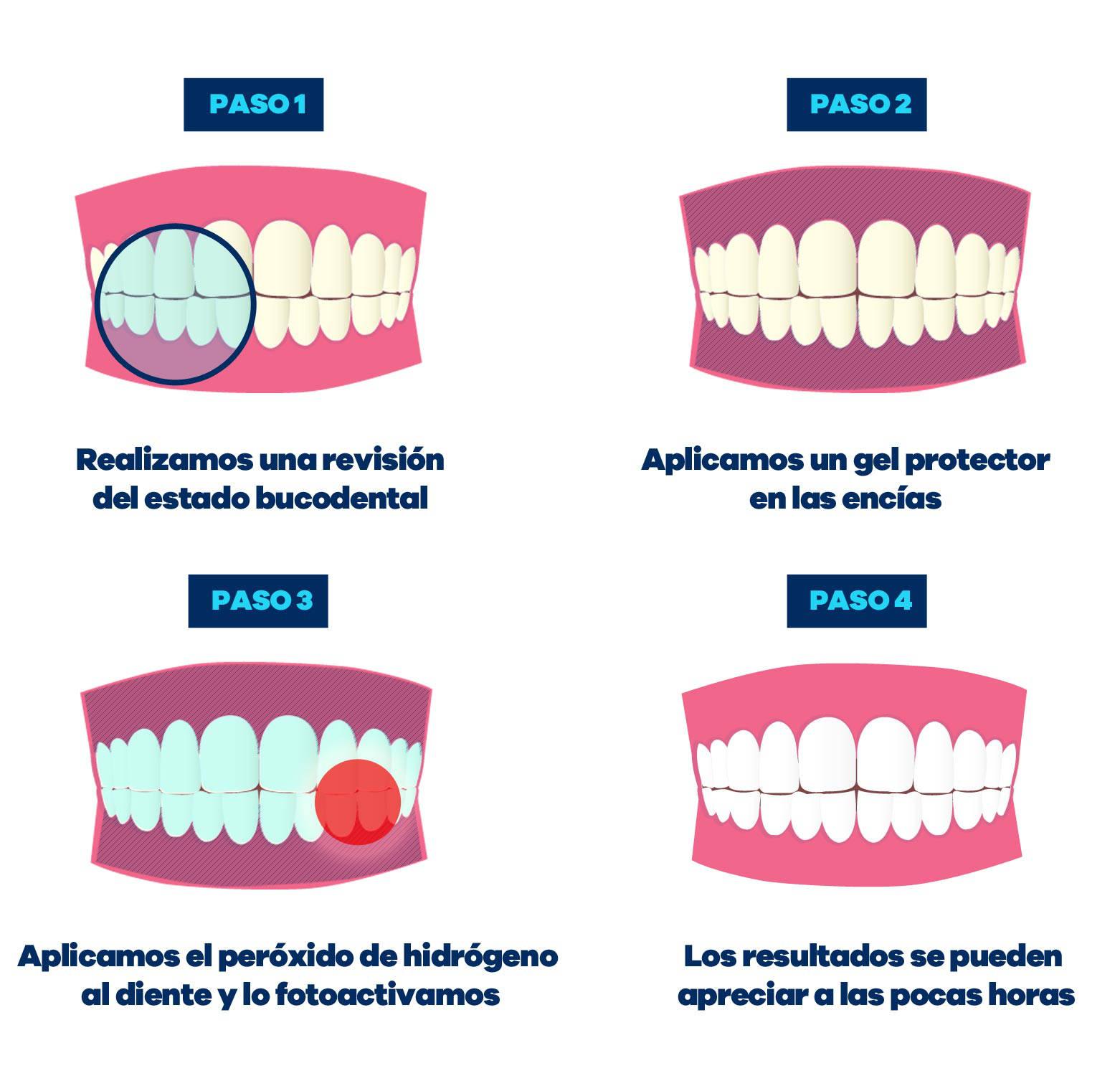 proceso antes del blanqueamiento dental