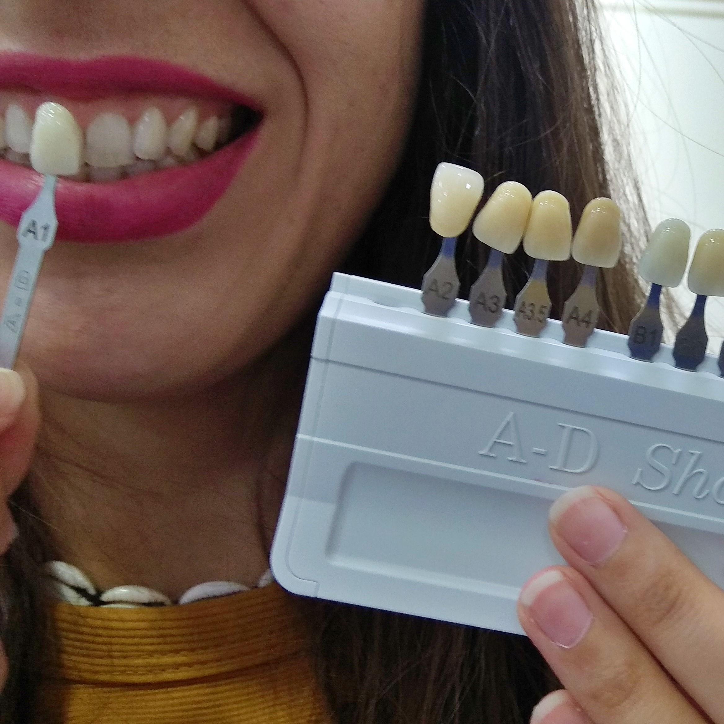 Blanqueamiento Dental: Qué es y Cuáles son sus Ventajas 7