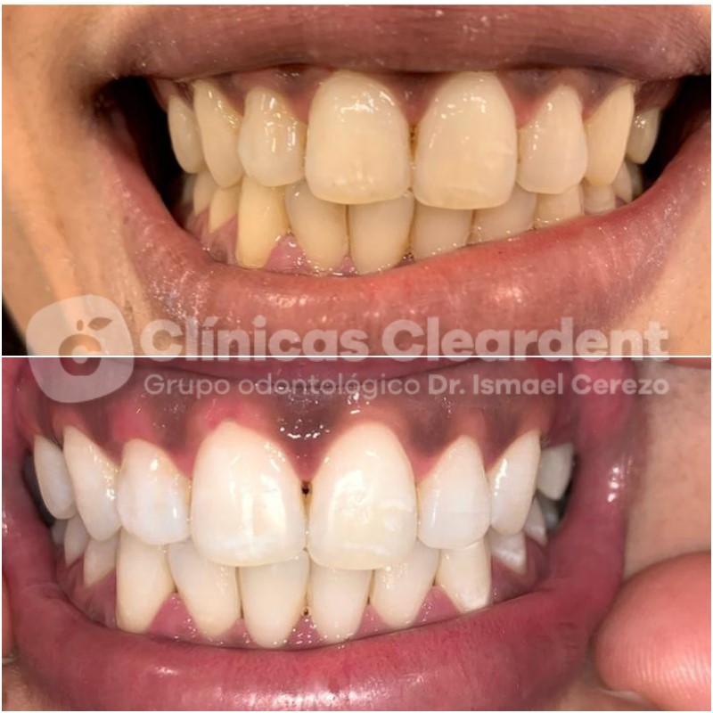 Blanqueamiento Dental: Qué es y Cuáles son sus Ventajas 4