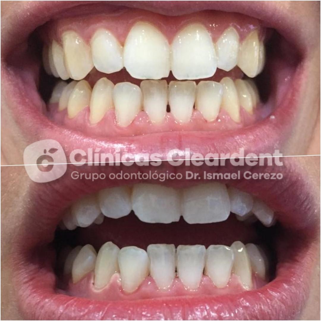 Blanqueamiento Dental: Qué es y Cuáles son sus Ventajas 11