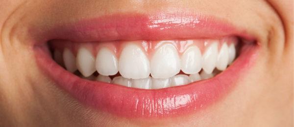Carillas Dentales o Blanqueamiento Dental
