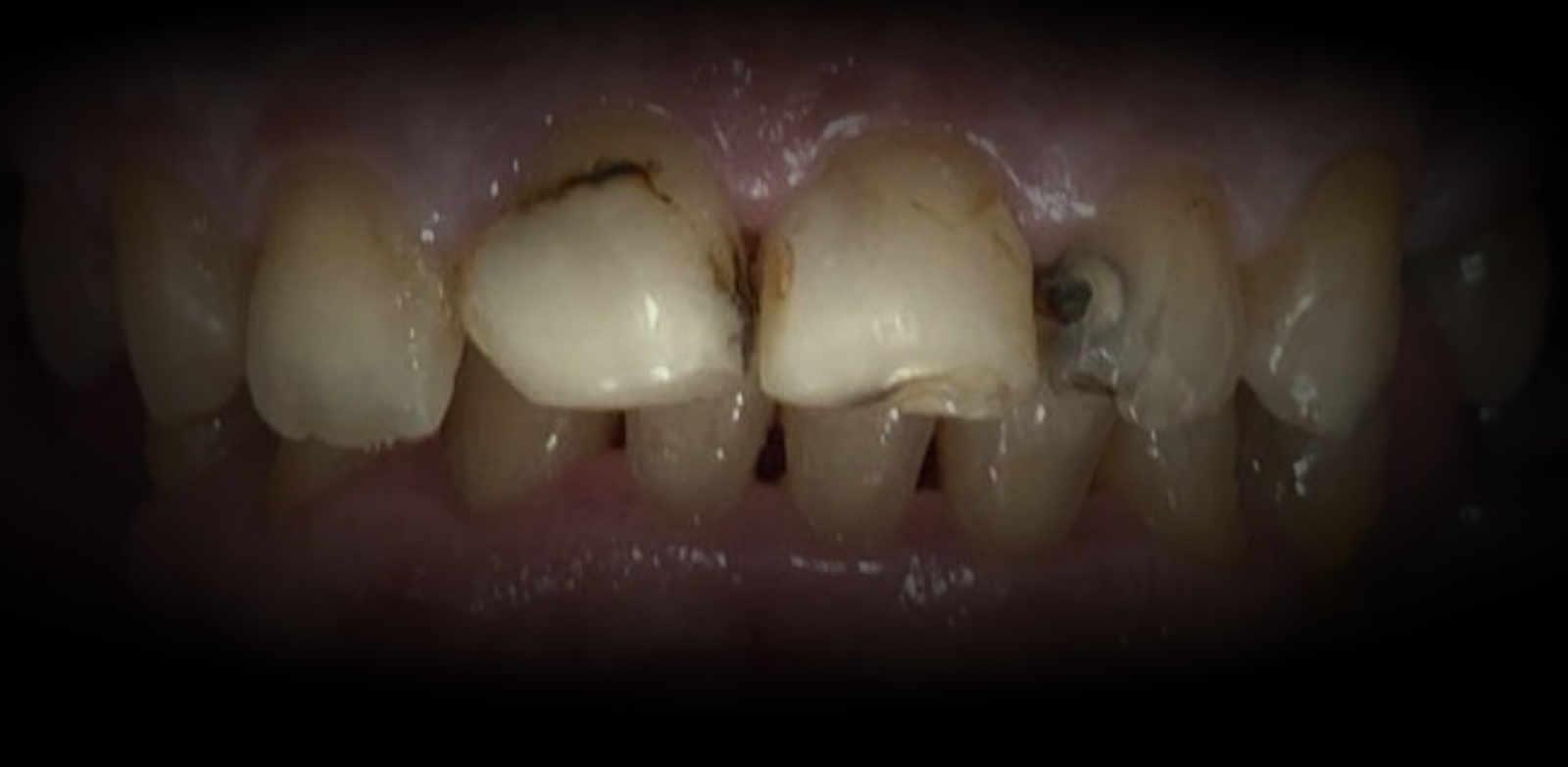¿Qué son las Carillas Dentales? 1