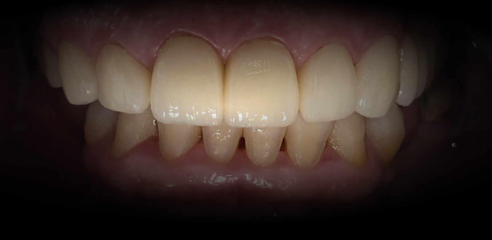 ¿Qué son las Carillas Dentales? 2