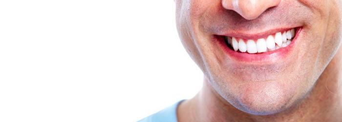 ¿Qué son las Carillas Dentales? 3