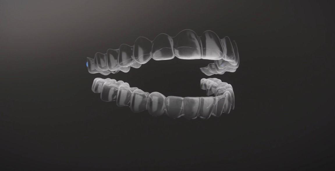 Invisalign la alternativa a los brackets. Todo lo que necesitas saber sobre el tratamiento. 3
