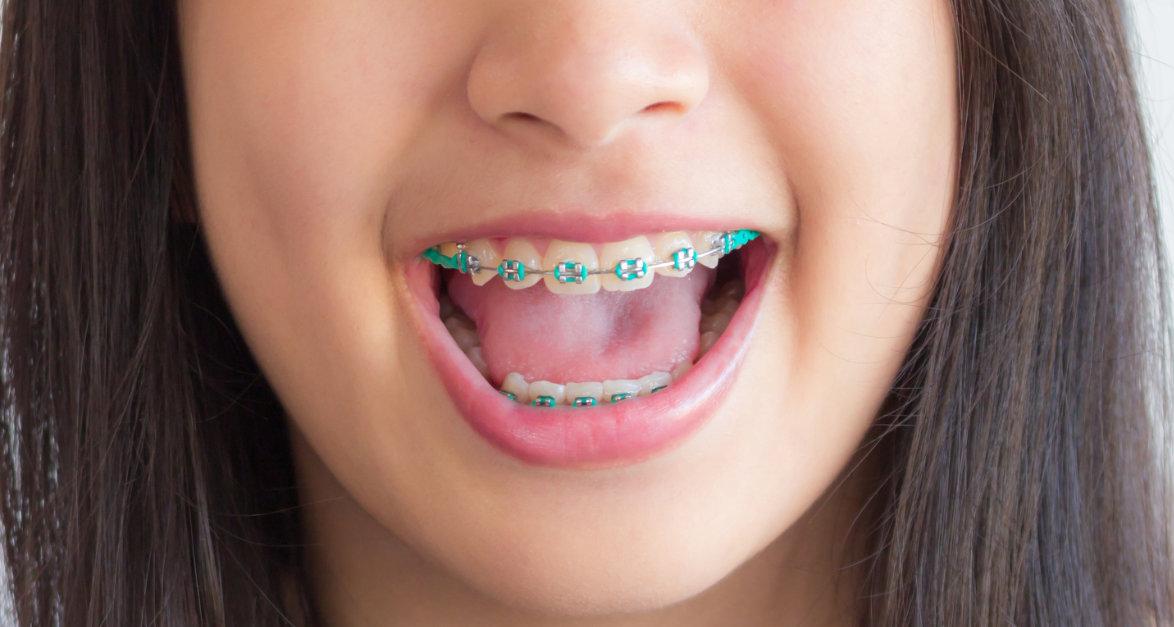 Cuidados para niños con tratamientos de ortodoncia