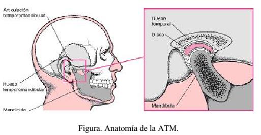 síndrome de disfunción temporomandibular