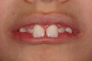 Que provoca la interposición labial