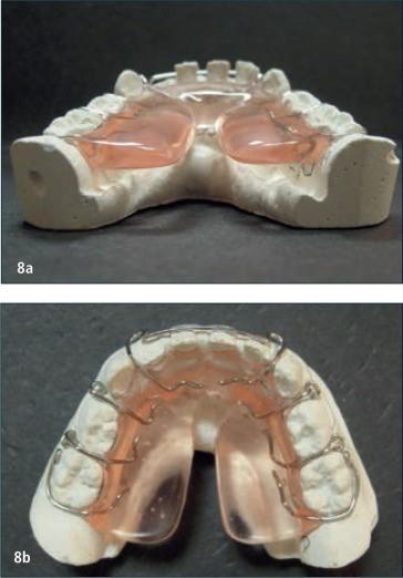 ¿Cómo tratar la respiración oral?