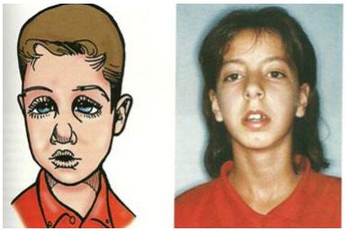 rasgos faciales característicos de la respiración oral