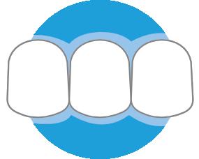 Ortodoncia Infantil 3