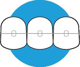 Ortodoncia 2
