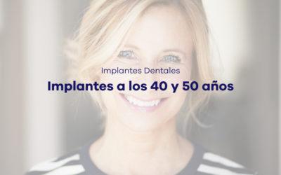 Implantes a los 40 y 50 años