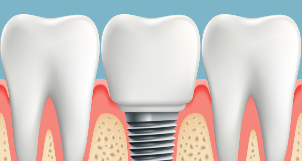 Implantes a los 40 y 50 años 1
