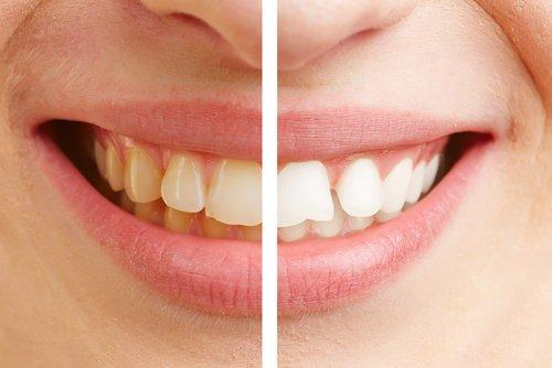 Ortodoncia a los 40-50 años 1