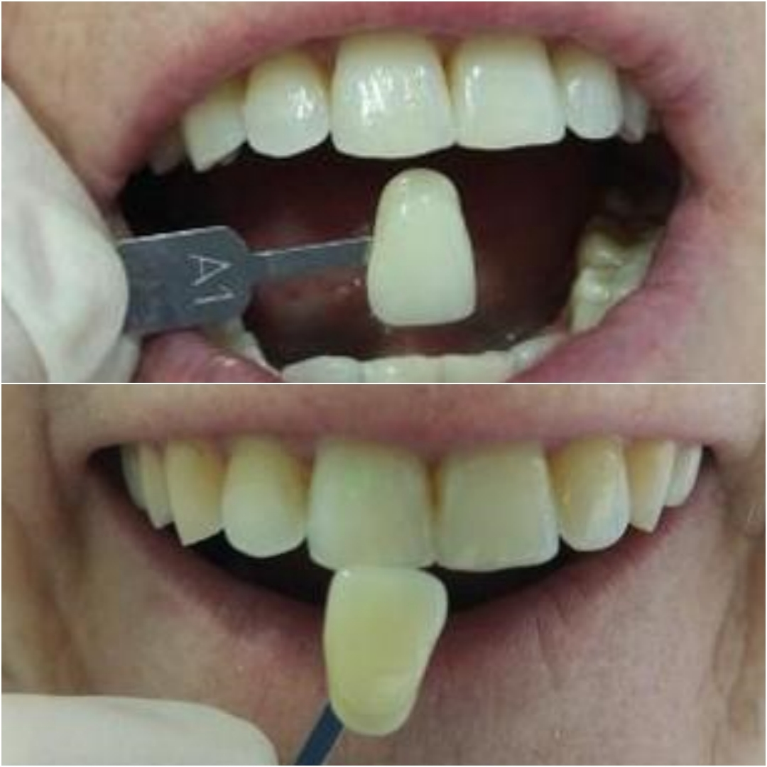 blanqueamiento_dental_2