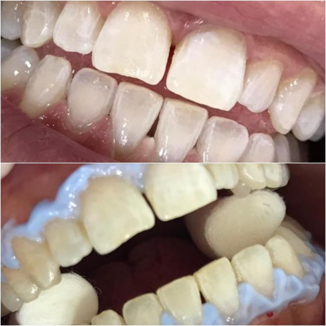 blanqueamiento_dental_3