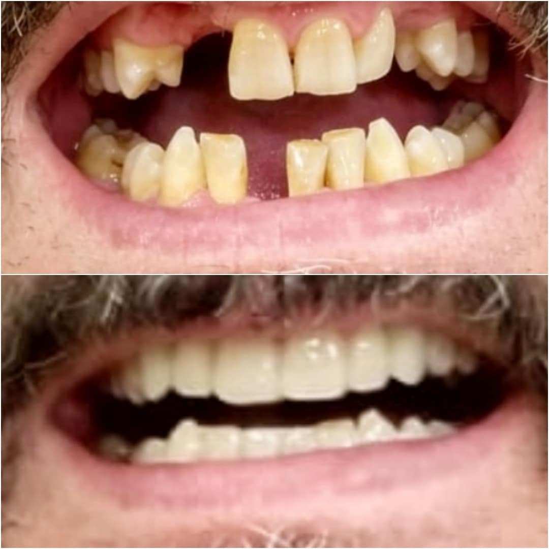 Estética dental 10