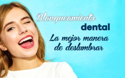 Blanqueamiento Dental: Qué es y Cuáles son sus Ventajas