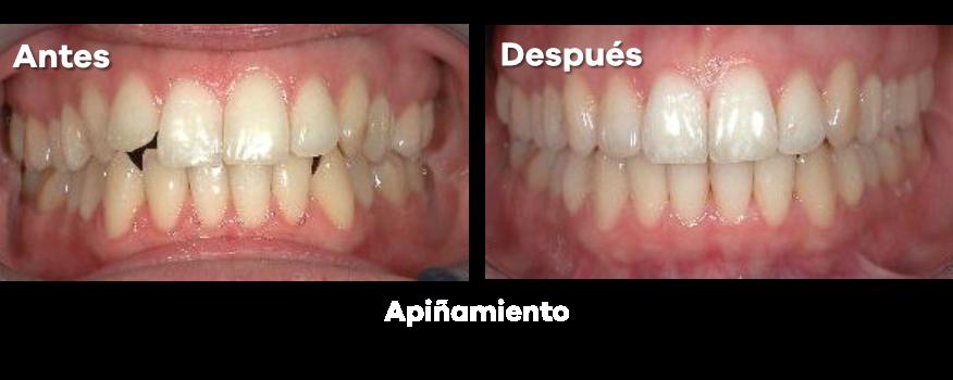 Ortodoncia 19