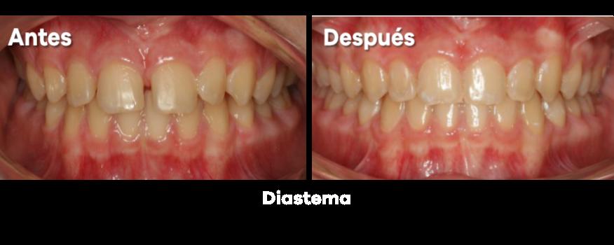 Ortodoncia 20