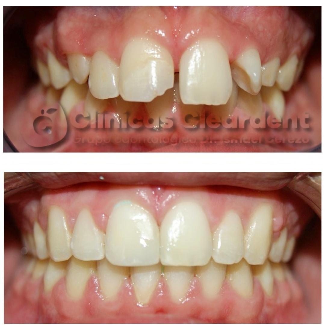 Ortodoncia en Adultos 2