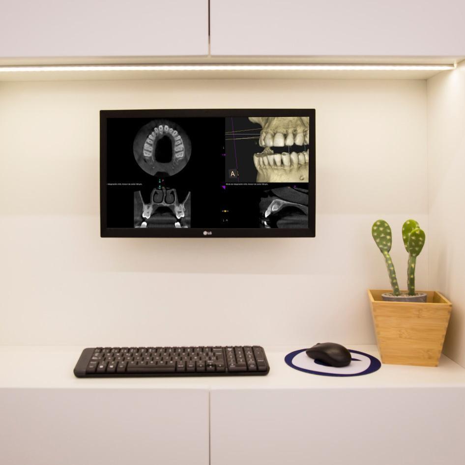 Ortodoncia en Adultos 18