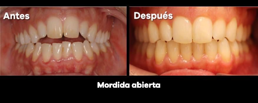 Ortodoncia 21