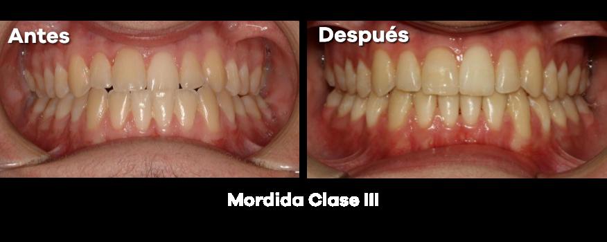 Ortodoncia 23