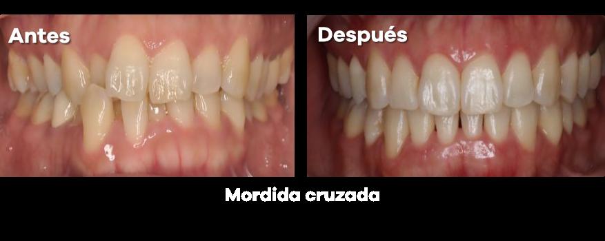 Ortodoncia 22