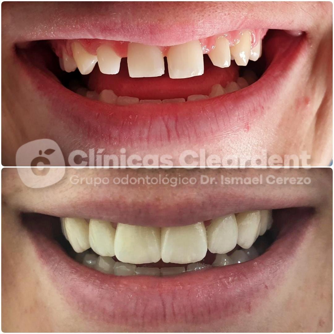 Ortodoncia en Adultos 15