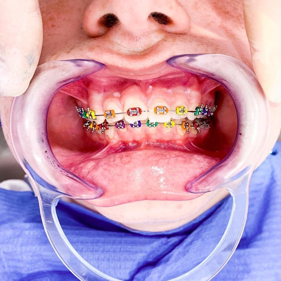 Ortodoncia en Adultos 4
