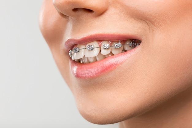 Ortodoncia en Adultos 21