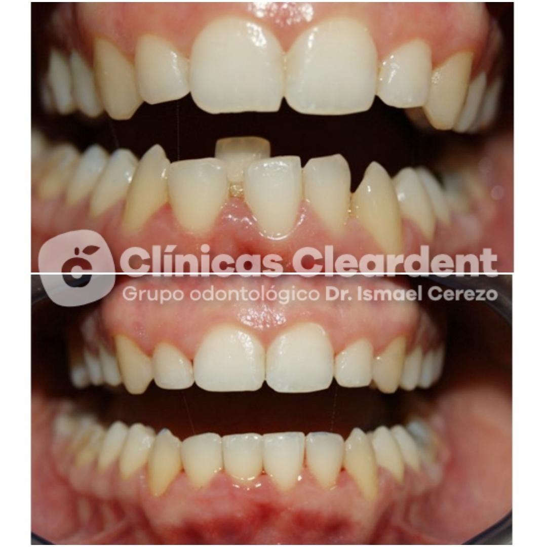 Ortodoncia en Adultos 22