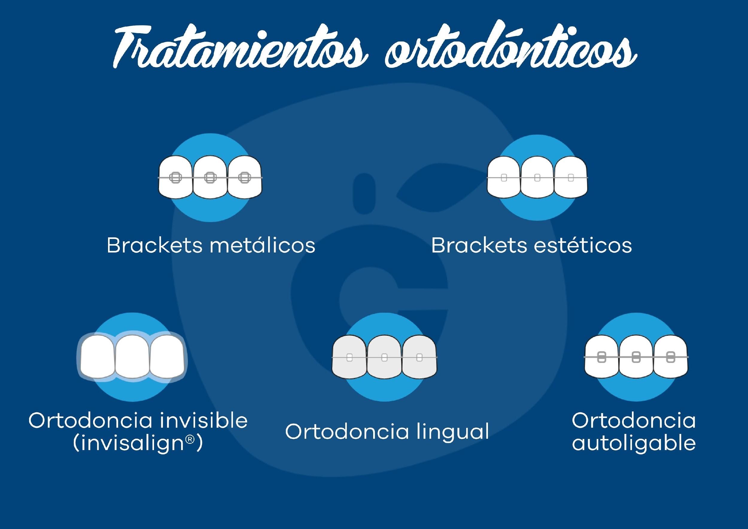 Ortodoncia en Adultos 13