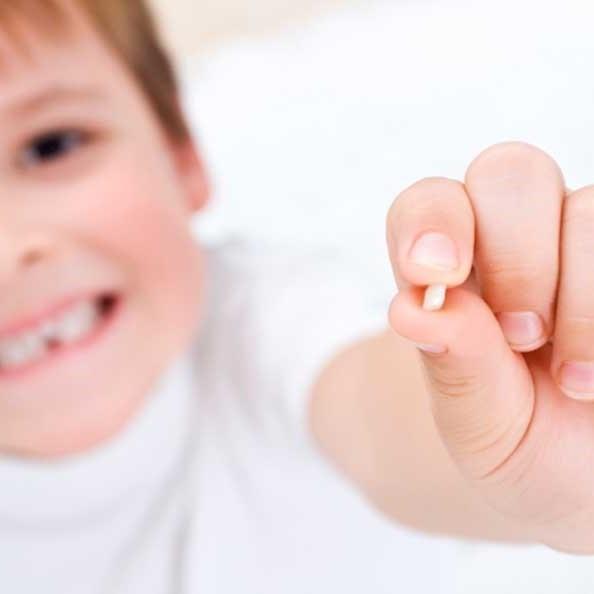 Ortodoncia infantil, todo lo que necesitas saber. 12
