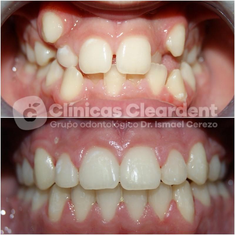 Ortodoncia infantil, todo lo que necesitas saber. 13