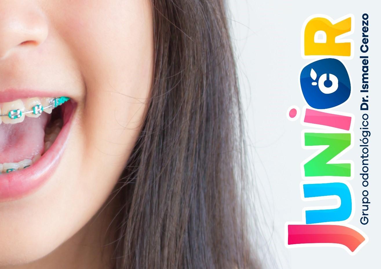Ortodoncia infantil, todo lo que necesitas saber. 1
