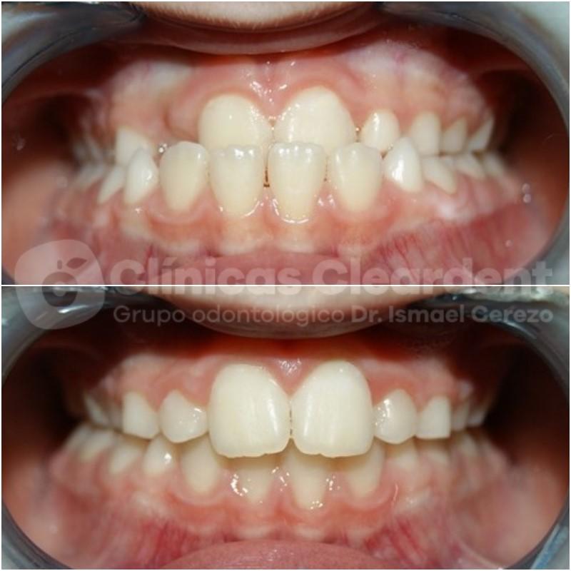 Ortodoncia infantil, todo lo que necesitas saber. 5