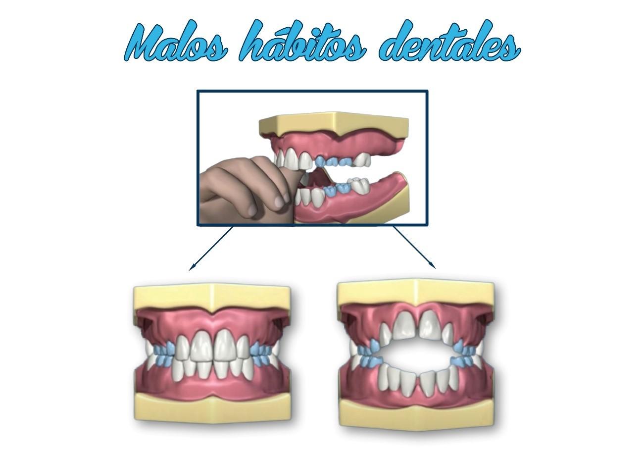 Ortodoncia infantil, todo lo que necesitas saber. 8