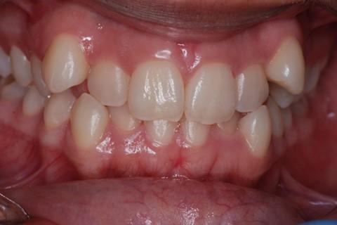 Malos hábitos infantiles orales. 9