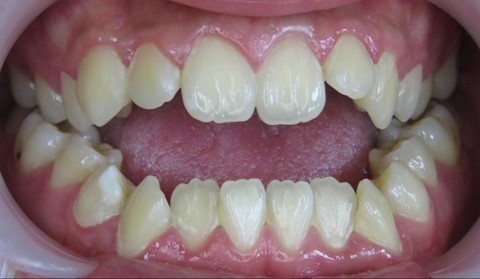 Malos hábitos infantiles orales. 8