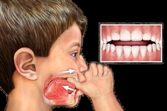 Malos hábitos infantiles orales. 4