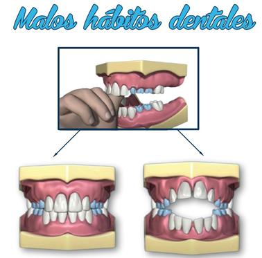 Malos hábitos infantiles orales. 2